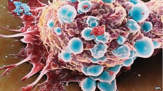 _70786912_m1220213-coloured_sem_of_a_breast_cancer_cell-spl