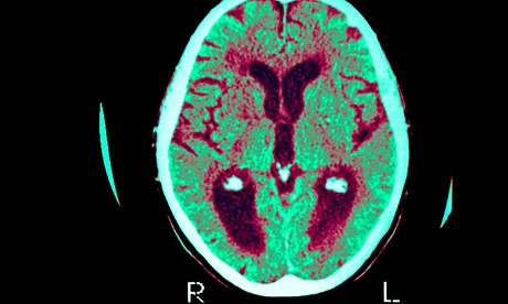 Alzheimer's disease brain scan