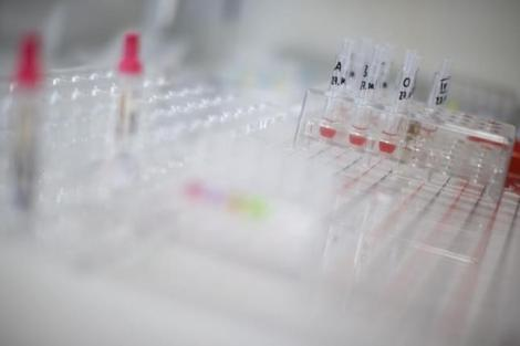 Blood tests are picture at the laboratory the  hospital of the Canton of Nidwalden in Stans