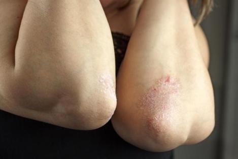 New-drug-clears-psoriasis-symptoms-in-trial