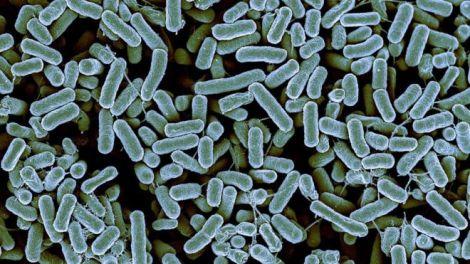 _85814776_c0260742-e._coli_bacteria,_sem-spl