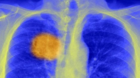 _88564199_c0212967-lung_cancer,_x-ray-spl